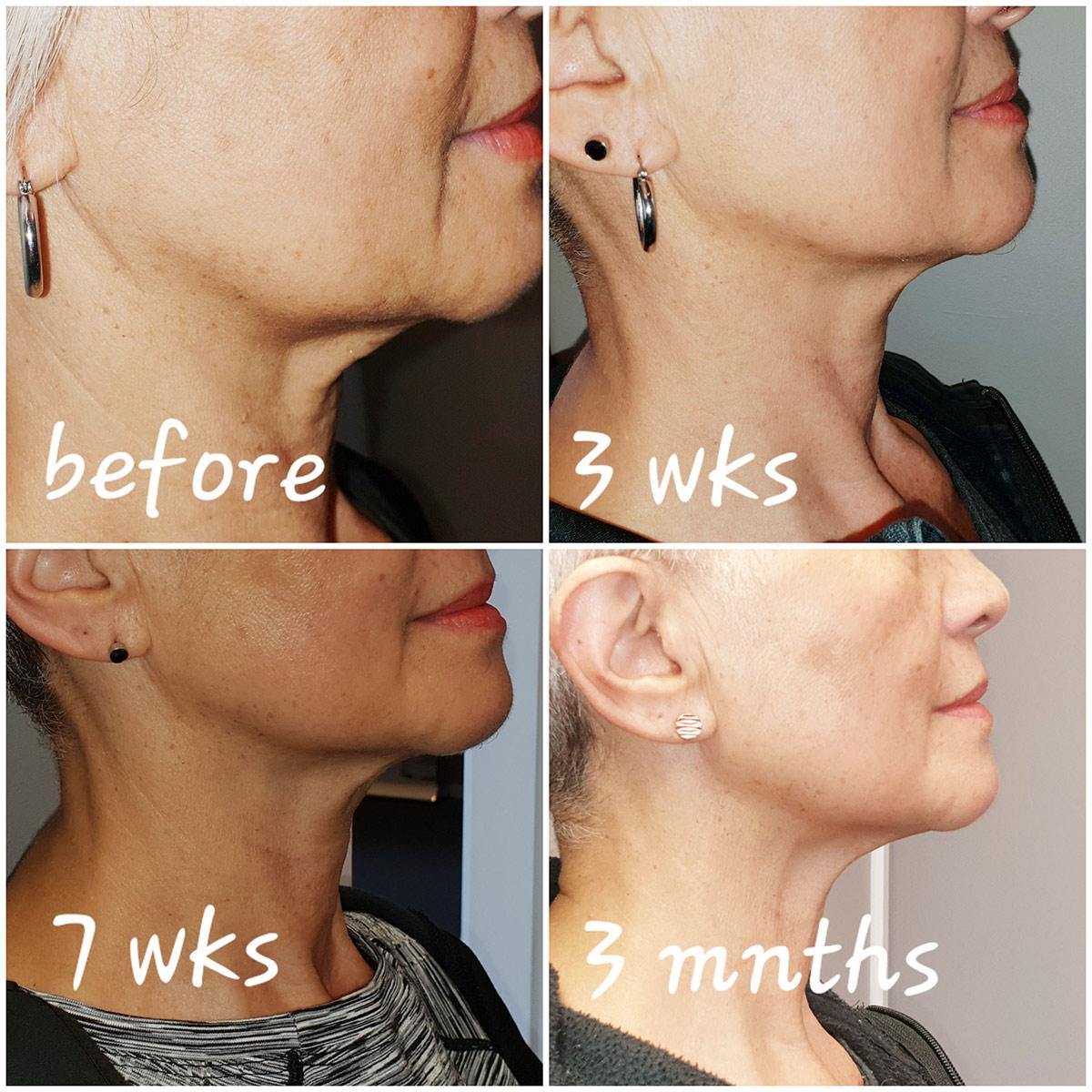 HIFU (High Intensity Focused Ultrasound) - Glow Beauty Therapy